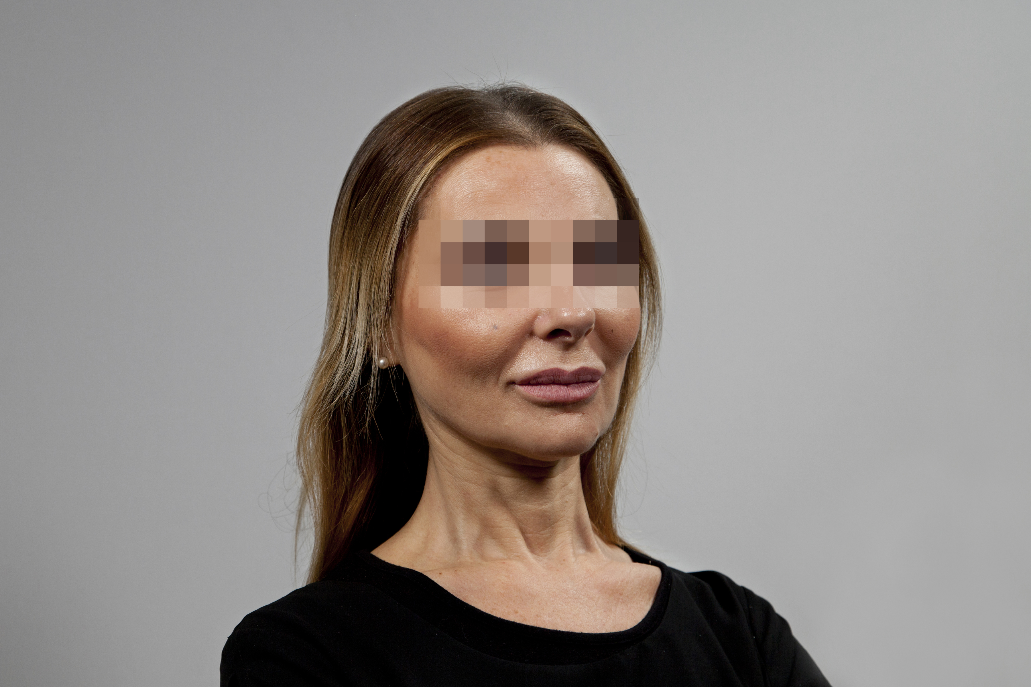 Before-49 ans - 540 implants capillaires
