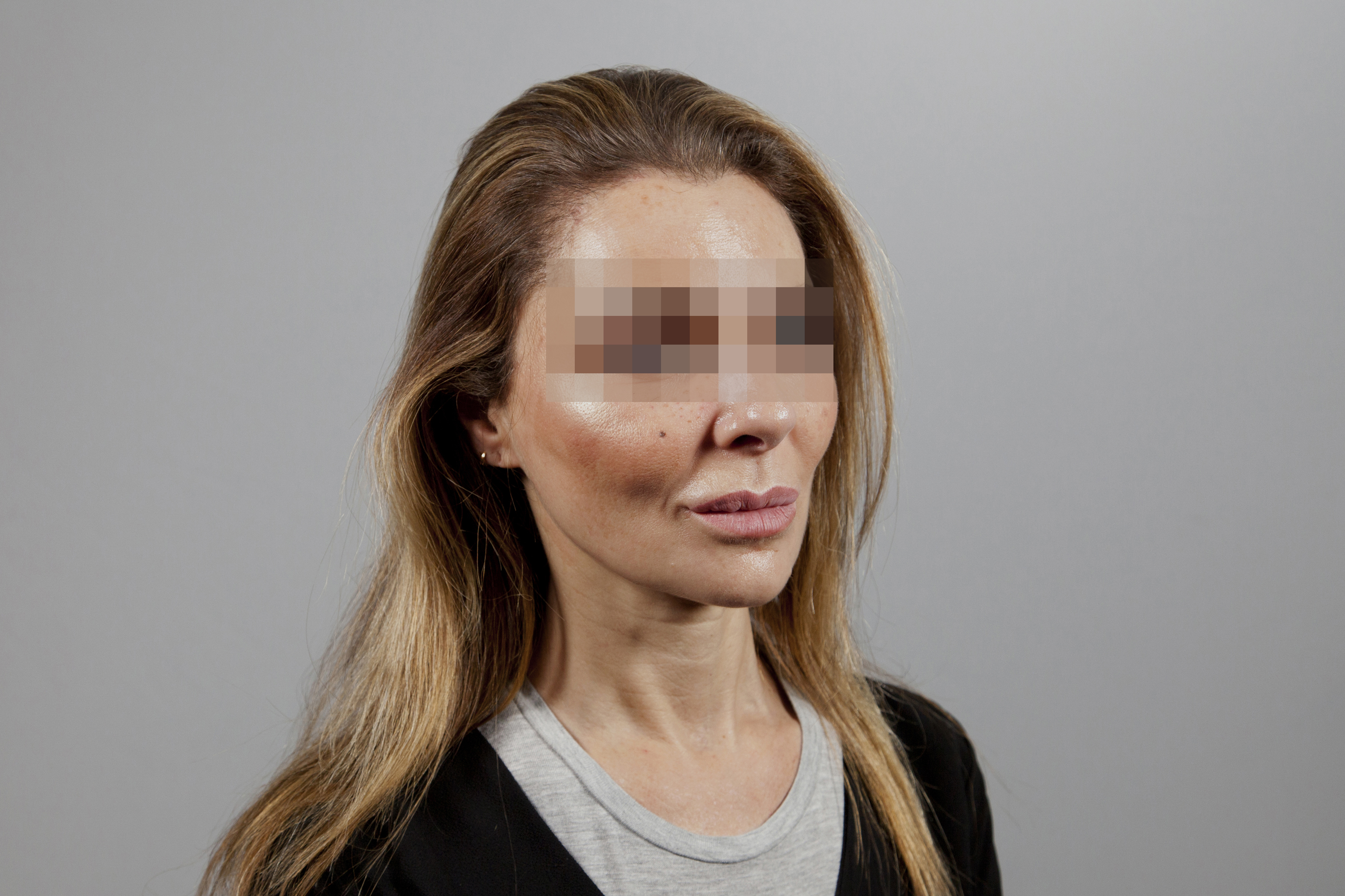 After-49 ans - 540 implants capillaires