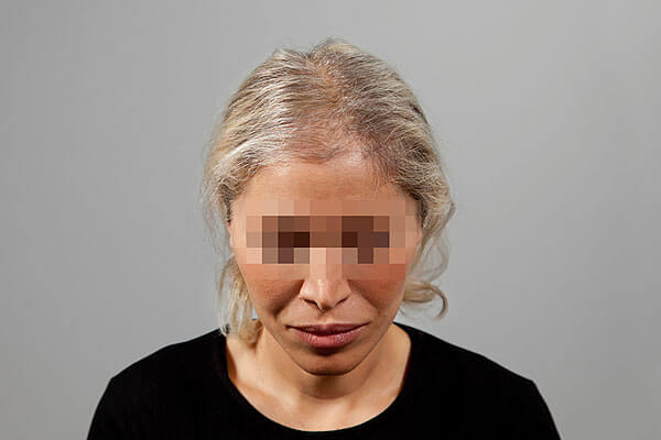 Before-51 ans - 646 implants capillaires
