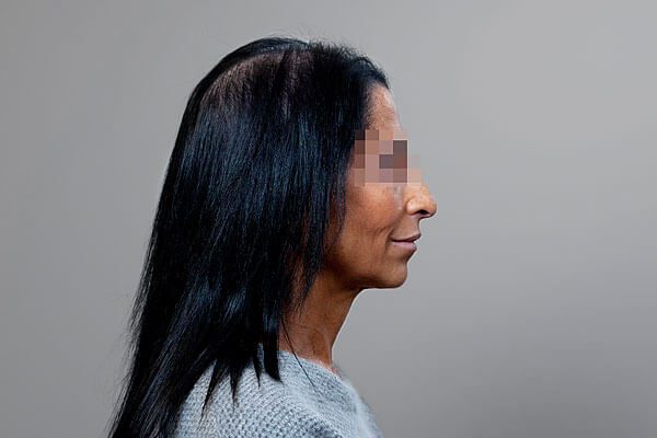 Before-54 ans - 640 implants capillaires