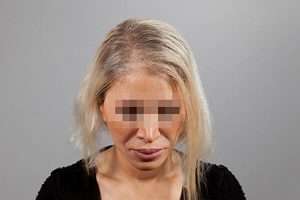 After-51 ans - 646 implants capillaires