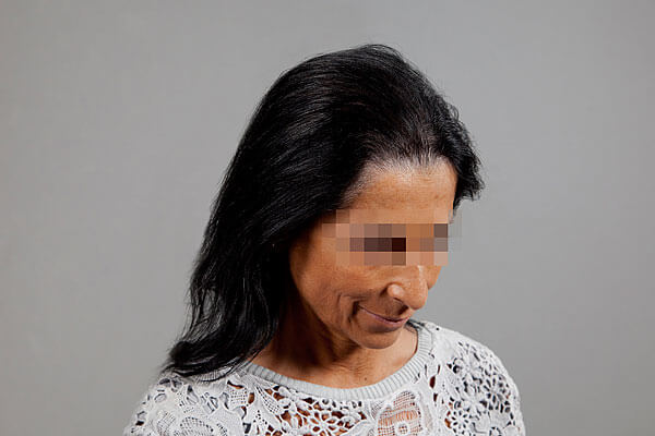 After-54 ans - 640 implants capillaires
