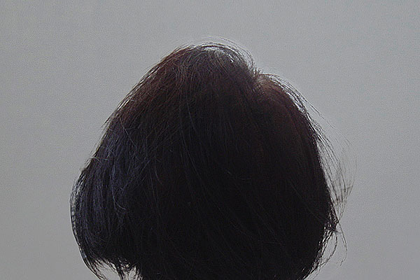 After-62 years old - 800 hair implants