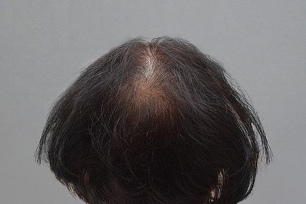 Before-62 years old - 800 hair implants