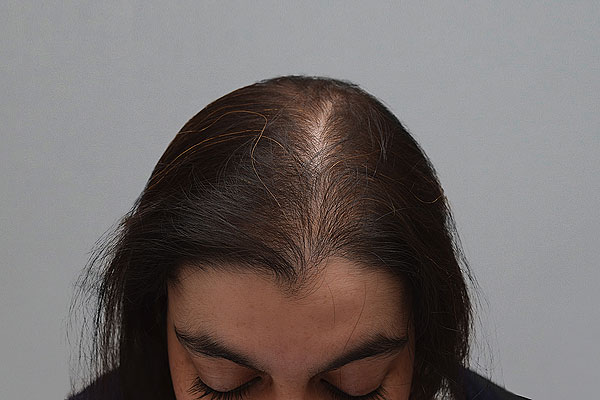 Before-30 ans - 400 implants capillaires