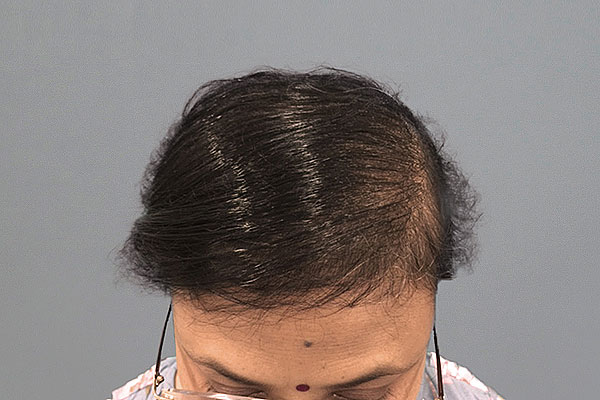 After-51 ans, 550 cheveux implants