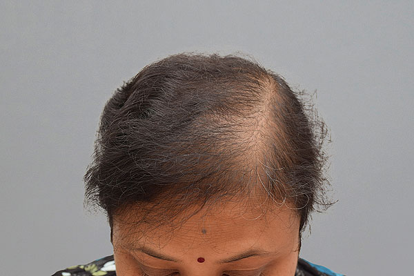Before-51 ans, 550 cheveux implants